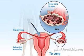 Các dấu hiệu của hội chứng đa nang