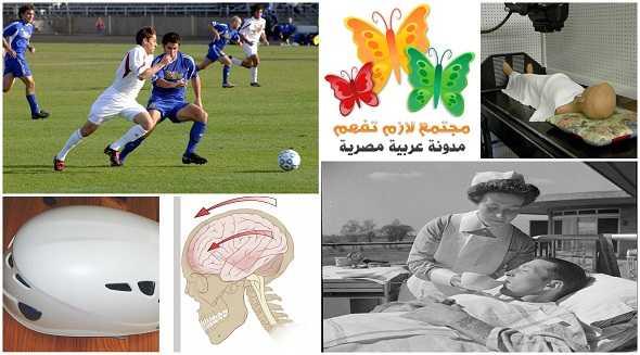 concussion-definition-ما-هو-ارتجاج-المخ