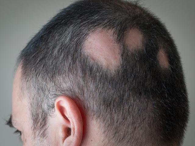 Home treatment hair loss treatment (alopecia)