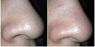 Избавиться от черных точек за 5 минут: фото до и после