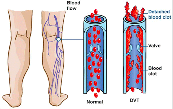 Blood Clot Dangers And Symptoms/Bright Side