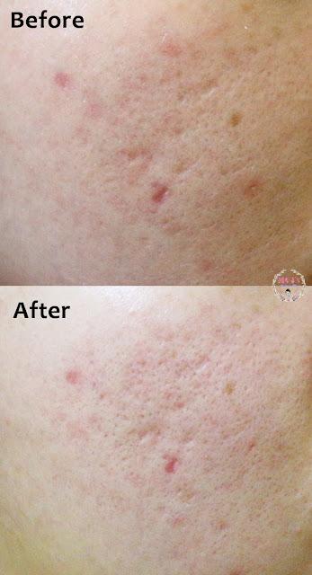 CALLISTA Online Skincare Review