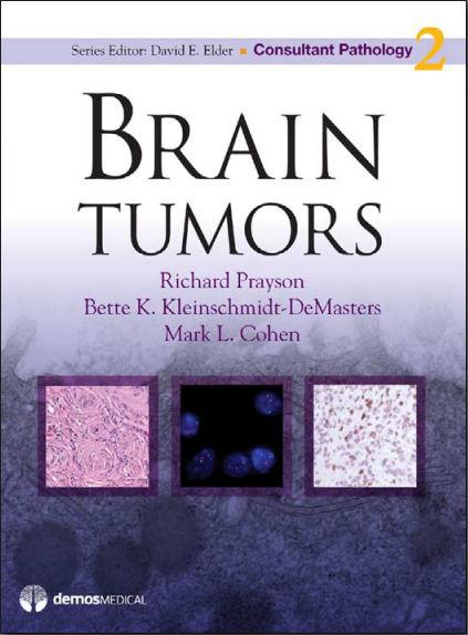 Brain Tumors [PDF]