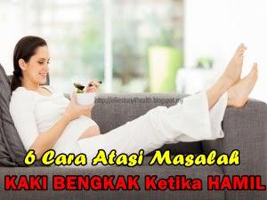 http://elliestory4health.blogspot.com/2017/01/6-cara-atasi-masalah-kaki-bengkak-ketika-hamil.html