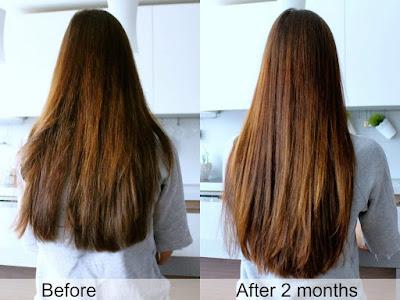 Mách bạn những cách mọc tóc nhanh hiệu quả nhất-https://www.khamphainfo.com/