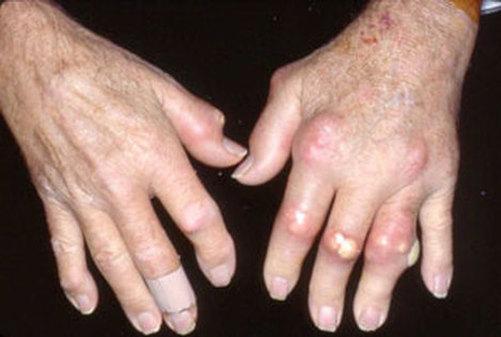 Pengertian Gout Arthritis dan Faktor Penyebabnya