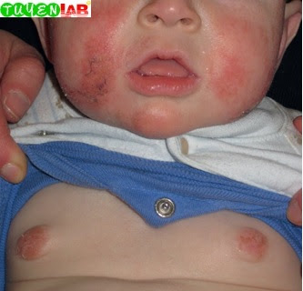 Fig. 5.29 Nipple eczema in an atopic child