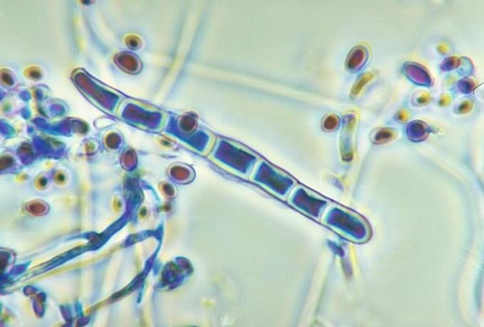 Ringworm (Dermatophytosis) pada Sapi
