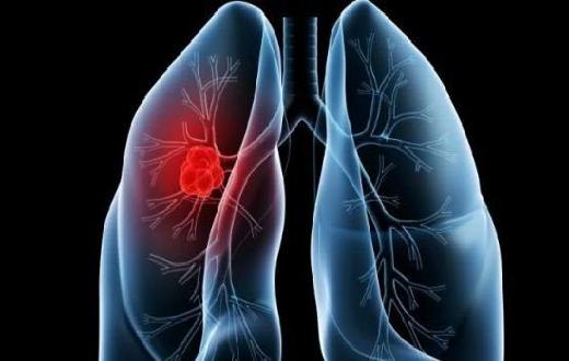Kenali gejala dan penyebab penyakit paru paru basah, bagaimana mengenali jika kita atau seseorang menderita penyakit ini ?