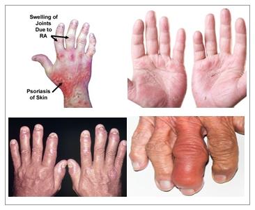 Cara Mengobati Radang Sendi Psoriasis (Psoriatic Arthritis)