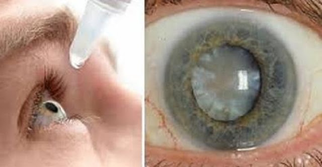 Good News: Scientist Finally Discovered An Eye Drops That Can Cure Cataracts