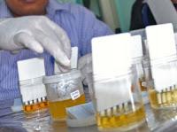 Cara Menghilangkan Efek Sabu Di Urin