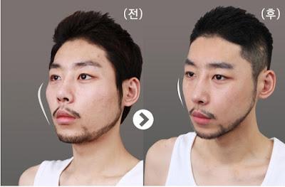 foto sebelum dan sesudah operasi pengecilan tulang pipi 3D