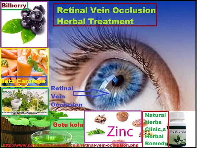 Retinal Vein Occlusion Herbal Treatment