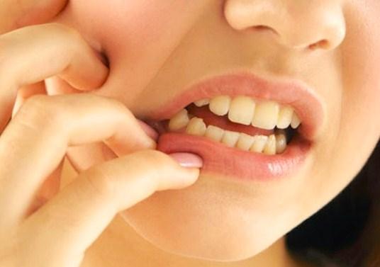 """""""sebab gigi ngilu"""""""