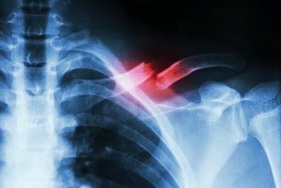 tulang bahu patah