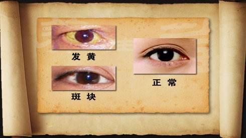 從五官就能看出身體30個健康秘密!(黑眼圈、舌苔)