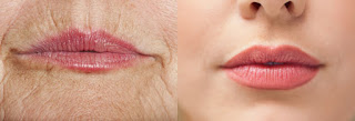 Lips Thin As You Age