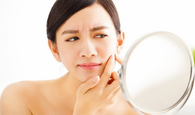 How to Cure Acne Naturally – 5 Simple Ways
