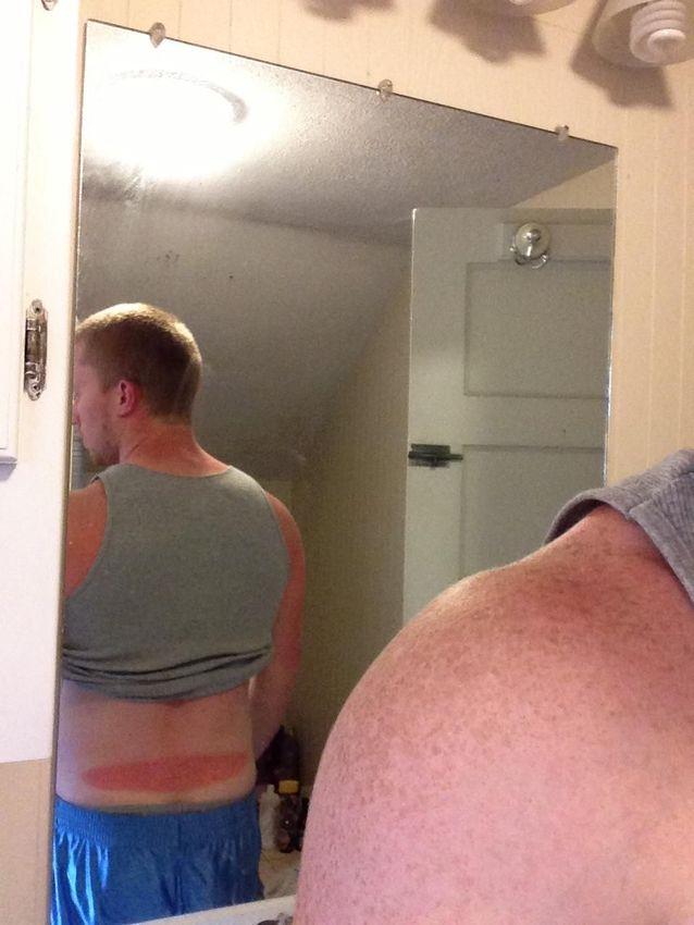 Pessoas que se esqueceram do protetor solar
