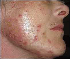 morgellons disease, herbal remedies