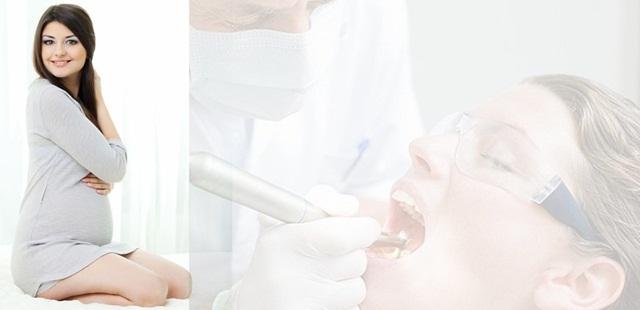 Fakta Tentang Hamil Kenapa Harus Dokter Gigi ? ini Penjelasanya