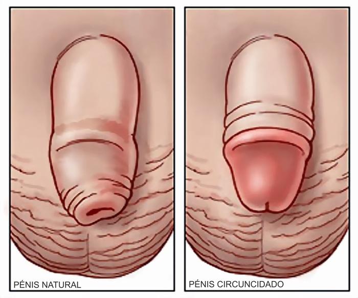 Se os tipos com um pequeno pênis são agradáveis a meninas