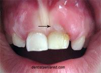 "<Imgsrc =""erupción-incisivo-central-ectópica.jpg"" width = ""200"" height ""146"" border = ""0"" alt = ""Erupción dental vestibular"">"