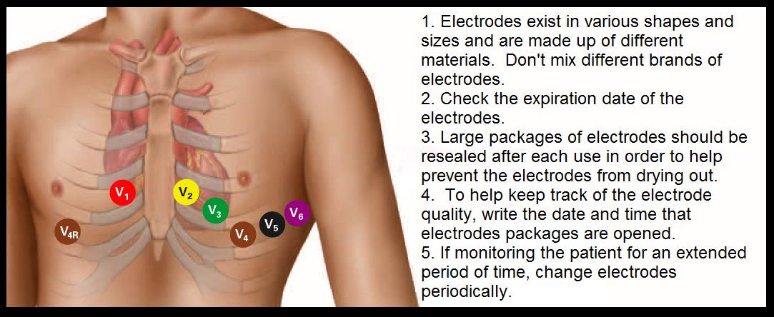 Telemetry Technician Course EKG Lead Placement class 3