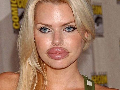 Výsledek obrázku pro špatny botox
