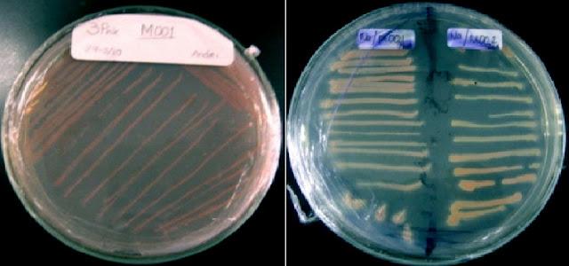 Bakteri Metanotrof: Teknologi Sang Penyelamat Bumi Kita
