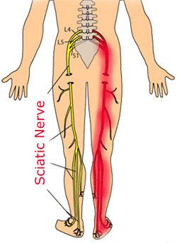 Nervio ciatico remedios para dolor