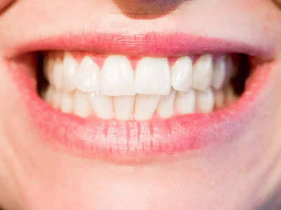HOW TO WHITEN TEETH FAST