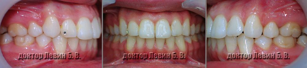 Три фото прикуса пациента в конце лечения. Вид фронта, справа и  слева.