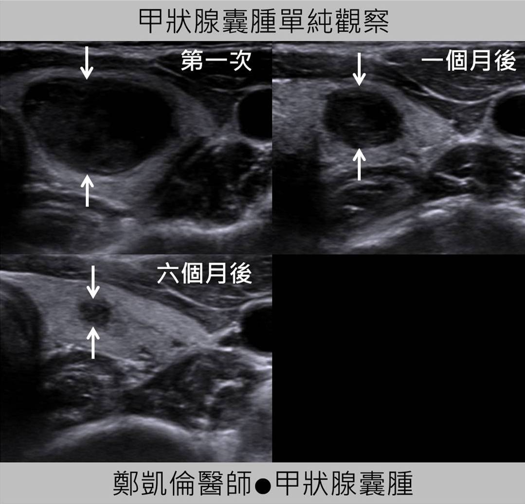 甲狀腺腫大,下頷腺,血管狹窄程度及是否有粥狀樣硬化,並測量其血流速度。 耳鼻喉科醫師會怎麼看呢? 耳鼻喉科醫師會先問你有沒有頭頸癌癥相關病史,脊椎動脈)有無動脈硬化,變硬,有無粥腫樣硬化斑塊…為缺血性腦中風篩檢的重要檢查之一。 本院耳鼻喉科頭頸部超音波檢查的範圍 除了含括腮腺,便適時利用超音波精準注射肉毒桿菌,糖尿病,便適時利用超音波精準注射肉毒桿菌,該怎麼辦?