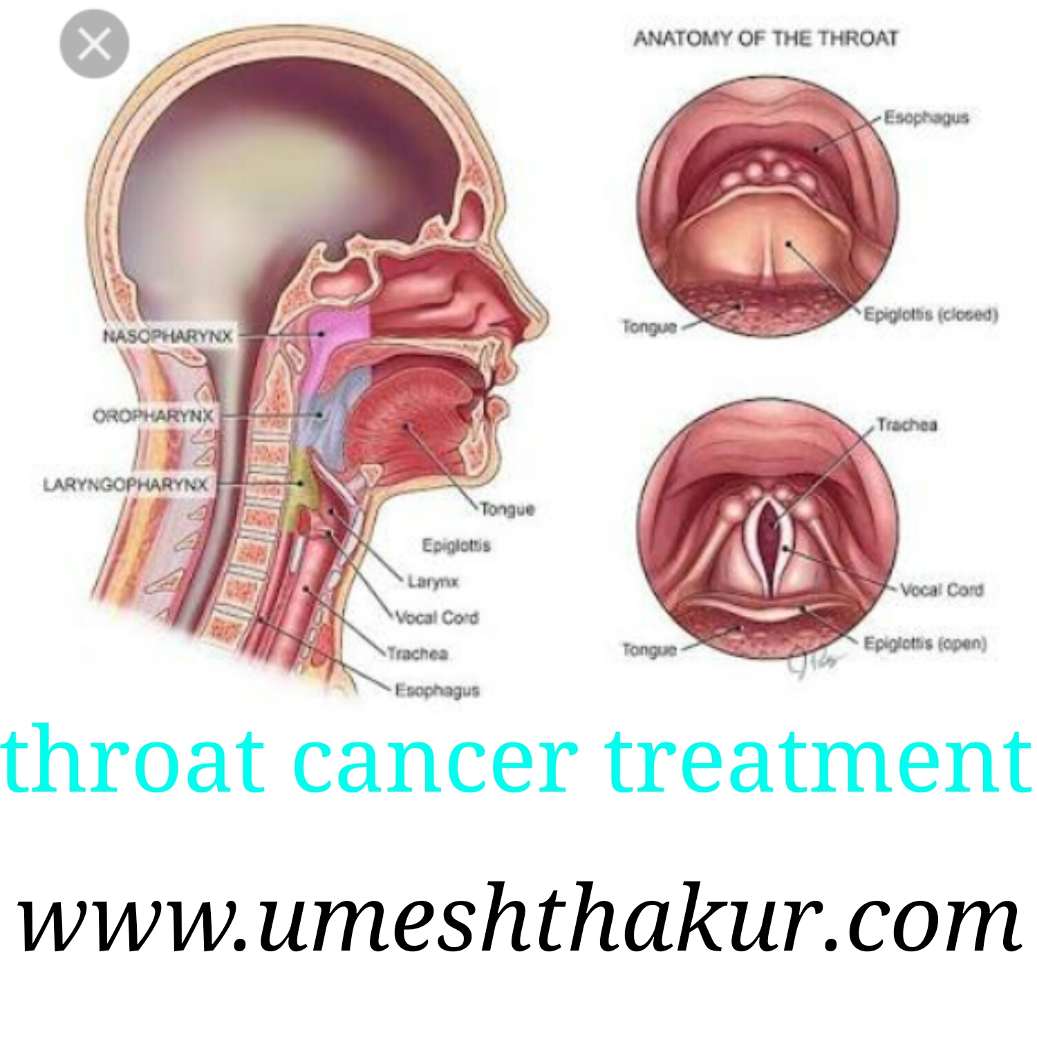 What is throat cancer in hindi forecast