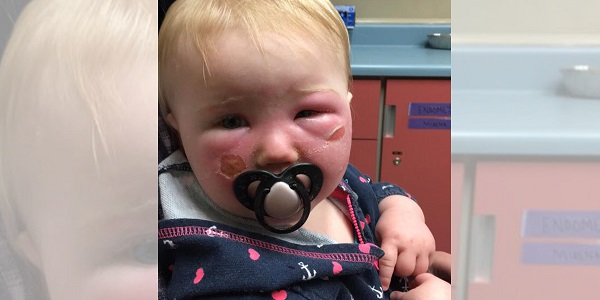 Baby gets severe burns