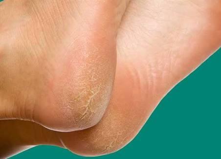 تعرفي علي طرق علاج تشقق القدمين في يوم واحد