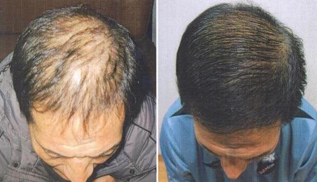 tinh dầu bưởi trị rụng tóc kích thích mọc tóc
