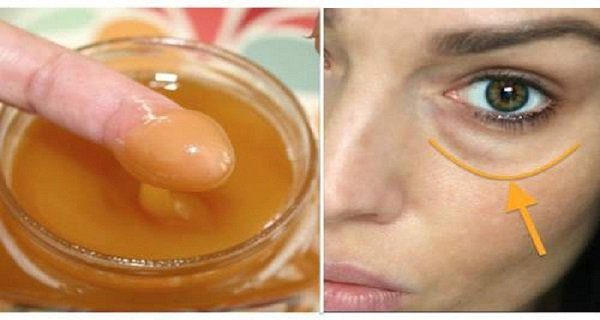 Apply This Mask On Your Dark Circles And Make Them Disappear!