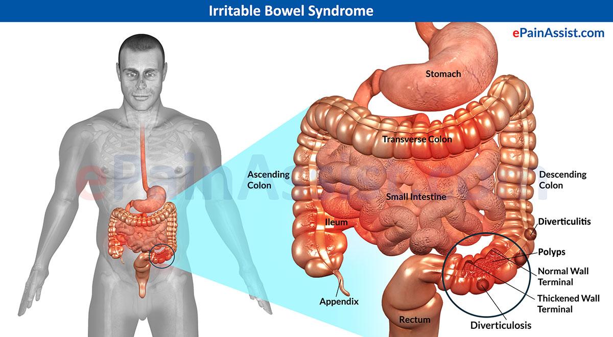 Síntomas del colon irritable, Tratamientos