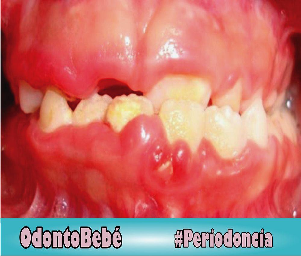 periodoncia-odontopediatria
