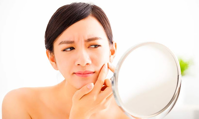 Face Mapping: Facts About the Location Of Your Acne That You Probably Don't Know