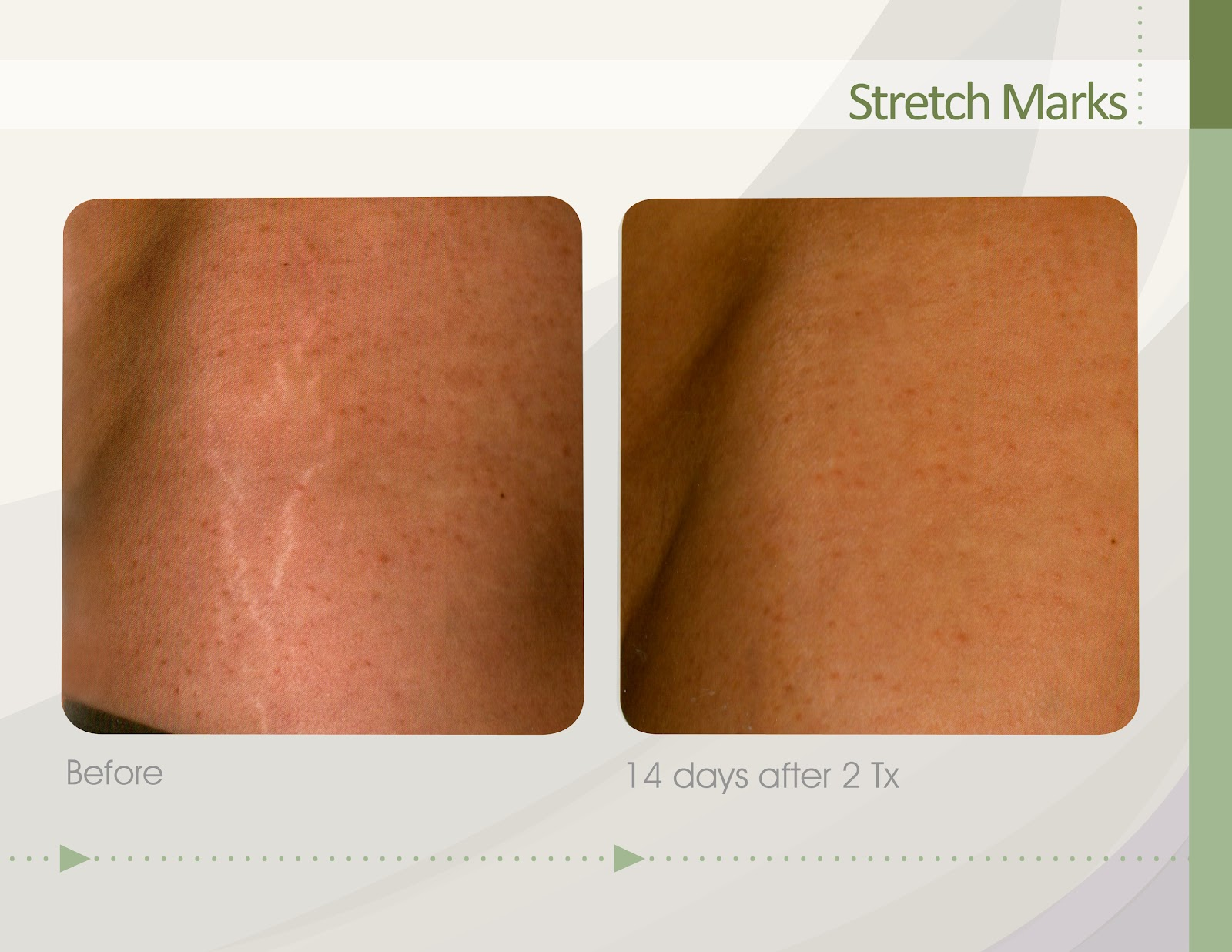 Best All Natural Stretch Mark Oil