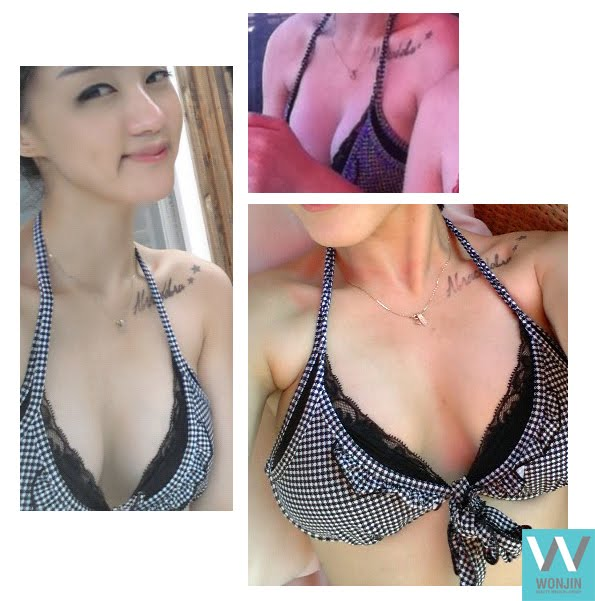 짱이뻐! - Look Voluminous After Breast Augmentation at Breast Surgery Specialized Clinic