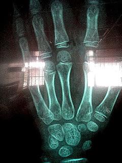 rayos x de mano