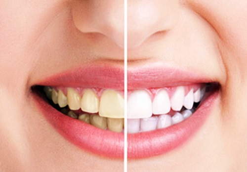 răng sứ sử dụng được bao lâu -4