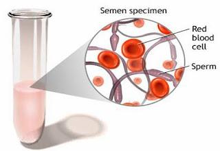 Penjelasan Darah dalam Semen Sperma (Hematospermia/hemospermia)