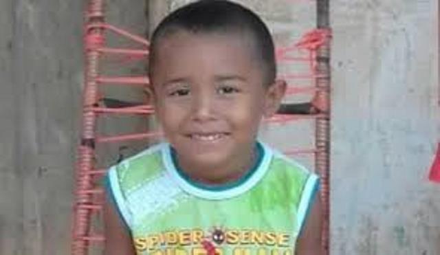 Morre em Goiânia João Miguel que sofreu graves queimaduras em carvoaria no Maranhão