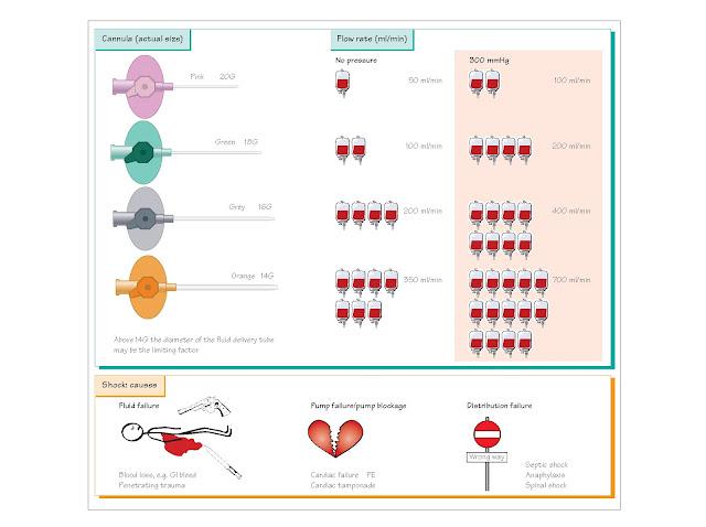 Shock And Intravenous Fluids, Intravenous access,  Special cases, Types of intravenous fluids, Crystalloids, Dextrose, Colloids, Types of shock, Fluid resuscitation, Grades of shock